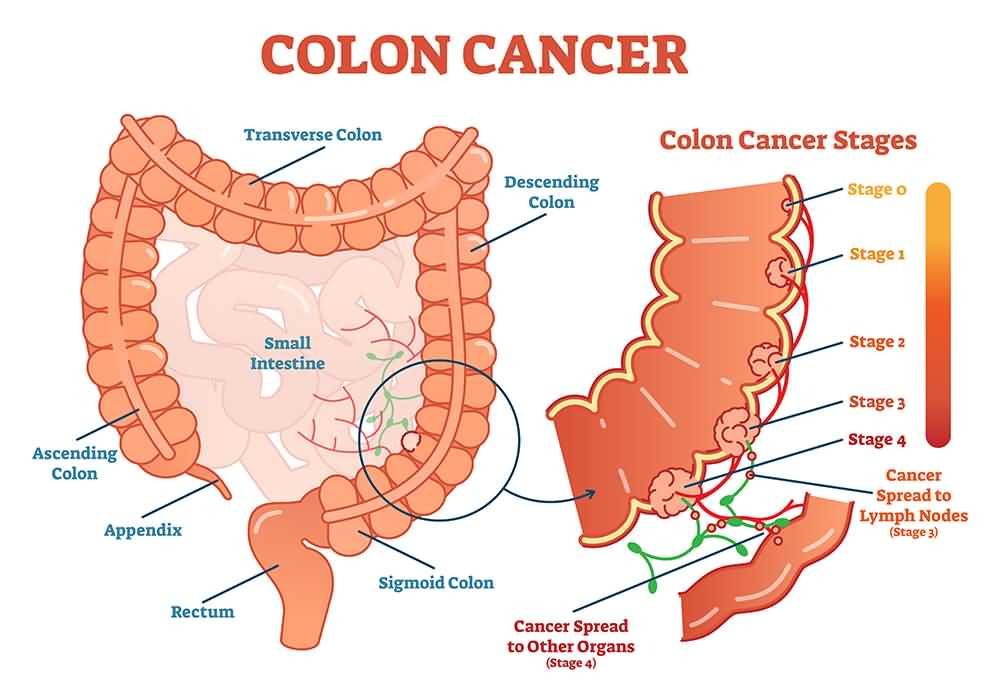 Colon Cancer, stage 4 colon cancer