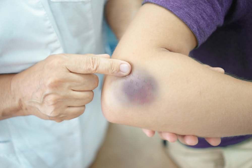 Bruises and skin manifestations