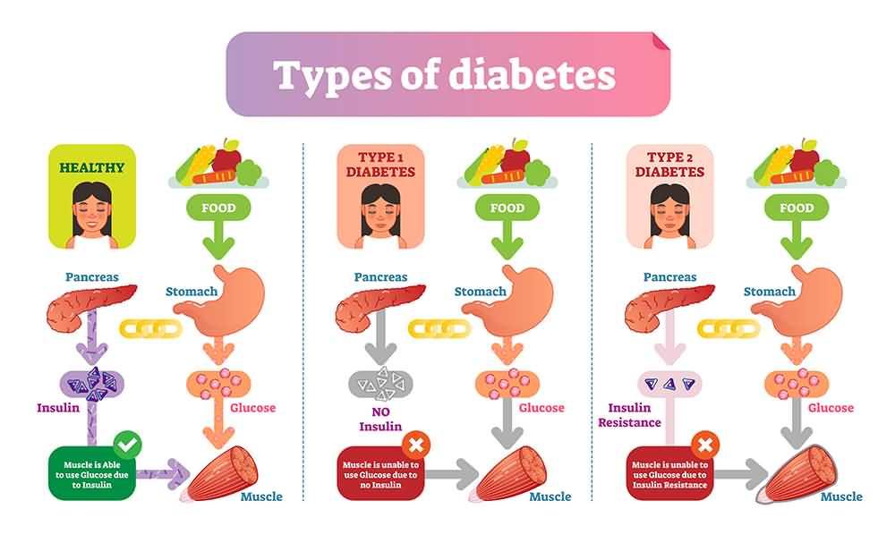 Diabetes, Angina Causes