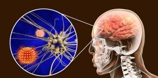 Meningitis treatment