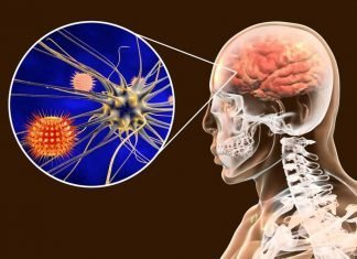 Meningitis treatment