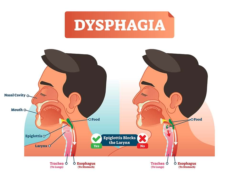 Dysphagia, Amyotrophic Lateral Sclerosis Symptoms