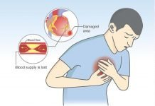 angina diagnosis