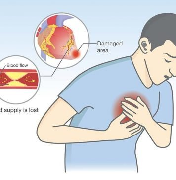 angina diagnosis