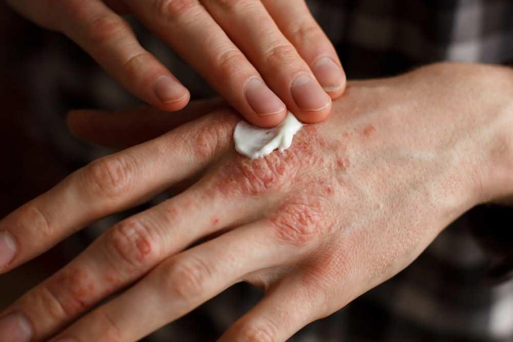 Skin problems, Zinc deficiency symptoms