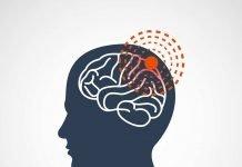 Meningitis Causes