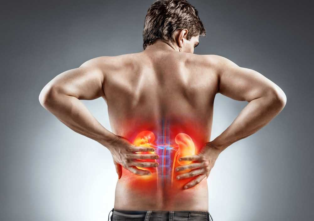 Kidney Infection Symptoms