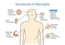 Meningitis Symptoms