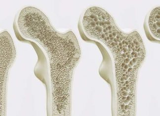osteoporosis, Calcium deficiency