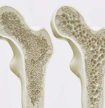 osteoporosis, Calcium deficiency
