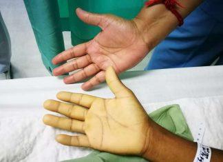 Severe Anemia