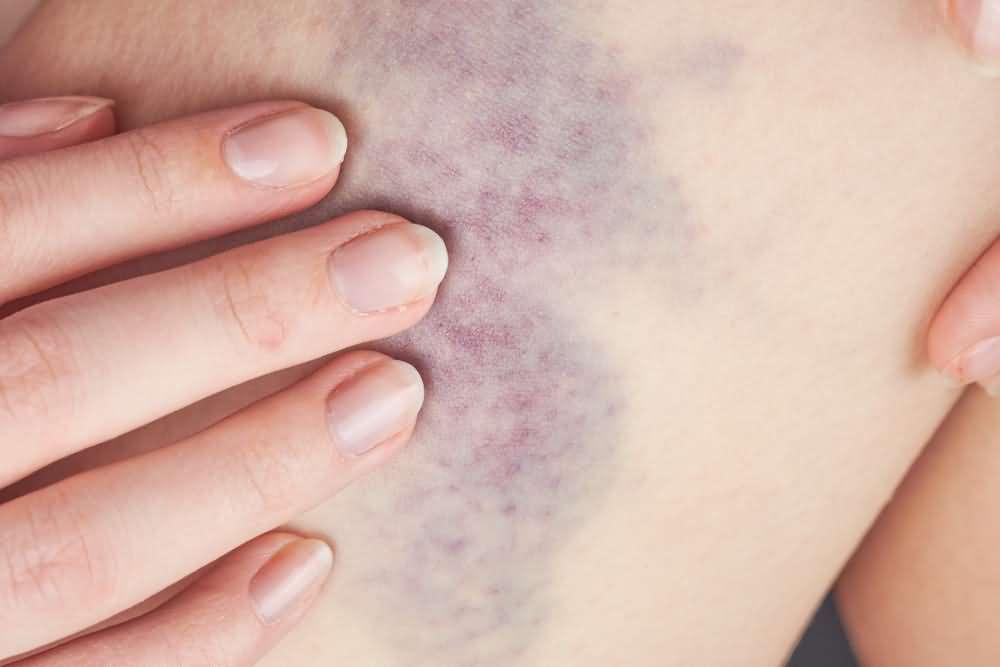 Easy bruising and bleeding