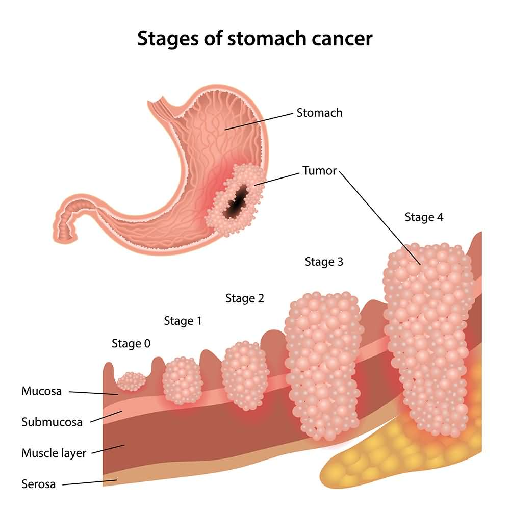 stomach cancer stages