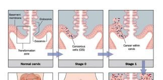 Cervical Cancer Stages