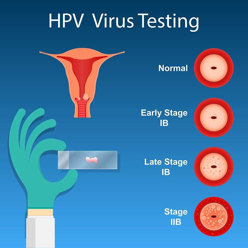 HPV Virus Testing, Human Papillomavirus Testing