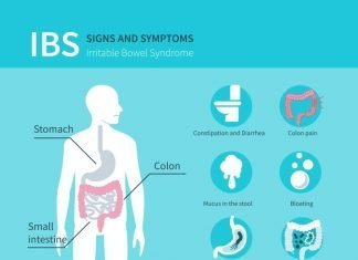 IBS Symptoms, Irritable Bowel Syndrome Symptoms