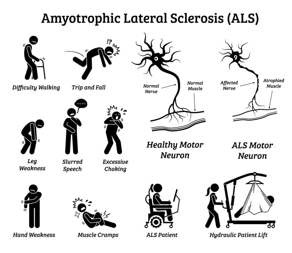 ALS Symptoms, Amyotrophic Lateral Sclerosis Symptoms