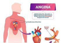 Angina Treatment