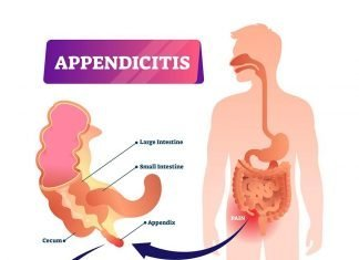 Appendectomy, Appendix, Appendicitis