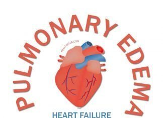 Pulmonary Edema Causes