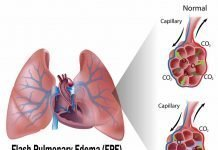 Flash Pulmonary Edema