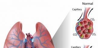 Flash Pulmonary Edema
