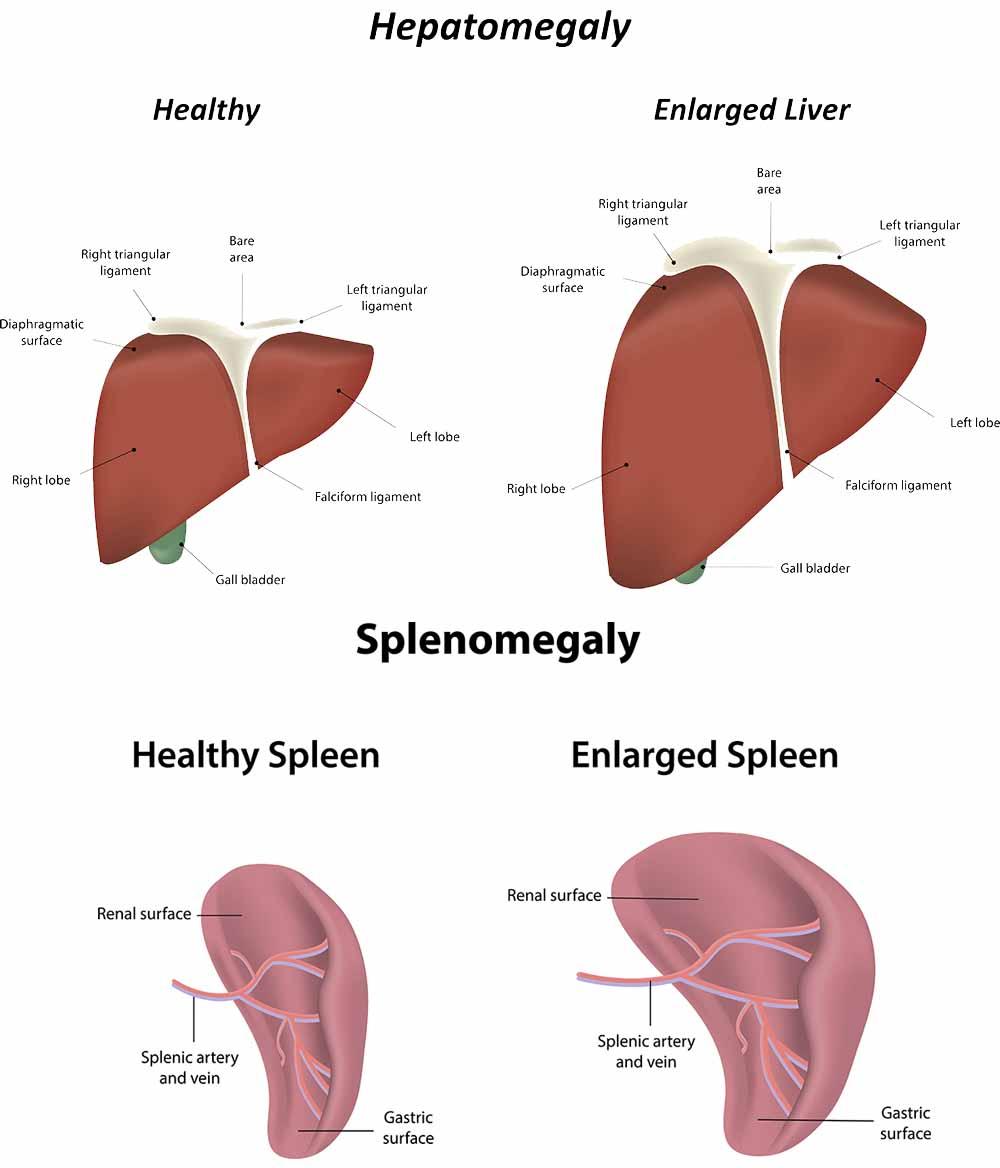 Enlarged liver and enlarged spleen